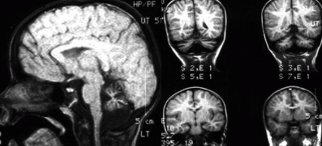 Подробно о гипоплазии мозжечка: причины, симптомы, диагностика, лечение, профилактика