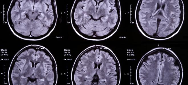 Абсцессы головного мозга: причины появления и лечение