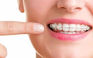 Как сапфировые брекеты спасают наши улыбки и здоровье мозга