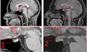Аденома гипофиза головного мозга: что такое и как лечить
