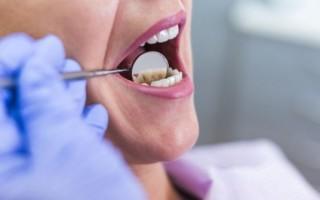 Сенсационное открытие ученых — здоровье мозга зависит от здоровья зубов