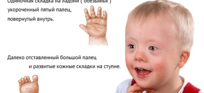 Все о болезни Дауна: симптомы, диагностика, лечение