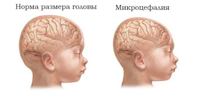 Микроцефалия головного мозга • причины, симптомы, лечение