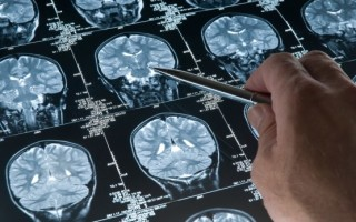 Симптомы, разновидности и лечение опухолей головного мозга