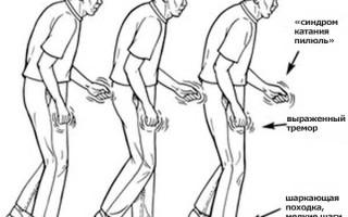 Болезнь Паркинсона: причины, симптомы, способы лечения