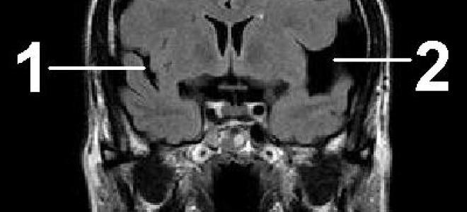Арахноидит головного мозга: причины, виды, симптомы, лечение, прогнозы