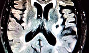 Что такое глиоз головного мозга и когда он становится опасным