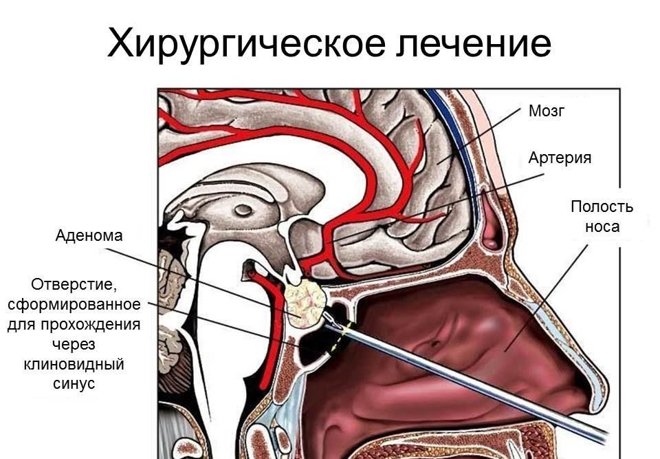 Лечение аденомы гипофиза