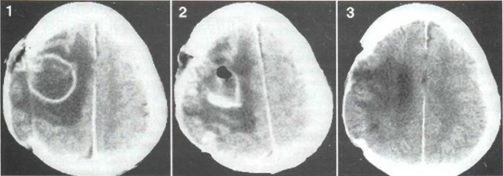 снимки мрт абсцесс головного мозга