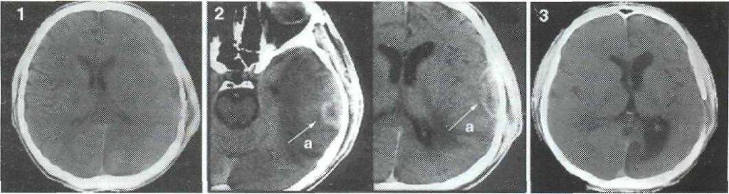 Консервативное лечение посттравматичсского субдурального абсцесса правой лобно-теменно-височной области.
