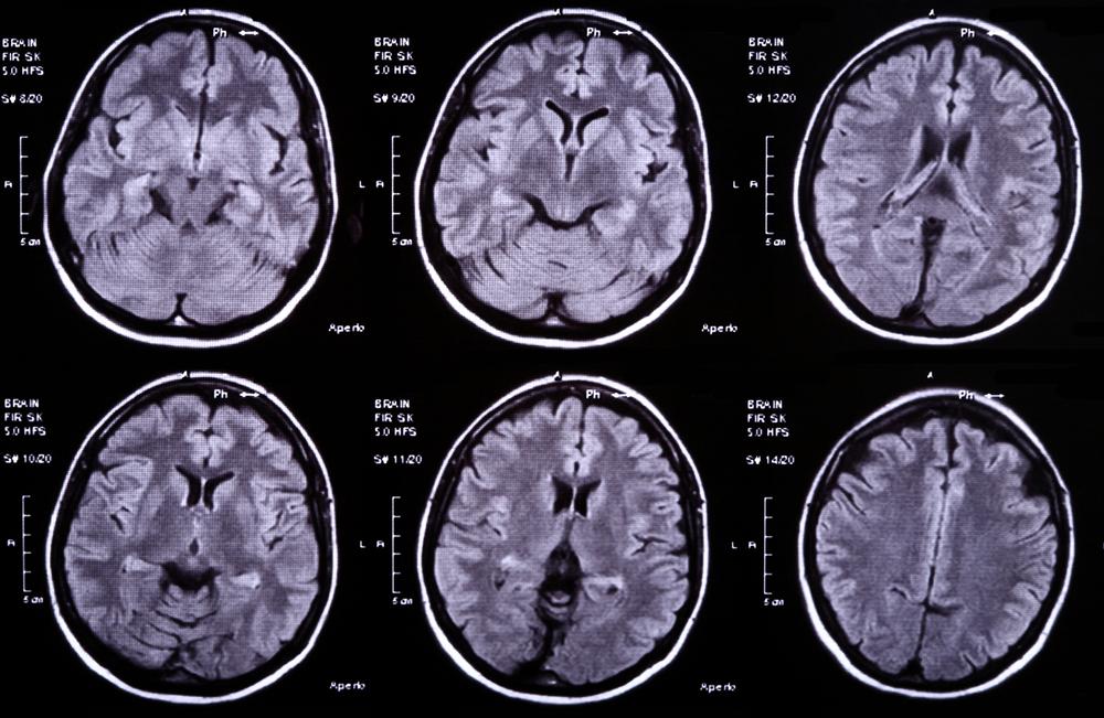 Виды абсцессов головного мозга