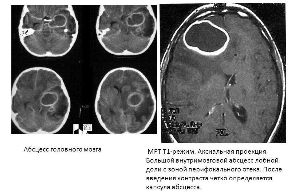Снимок МРТ - абсцесс головного мозга