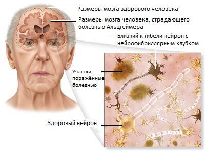 мозг больного болезнью альцгеймера
