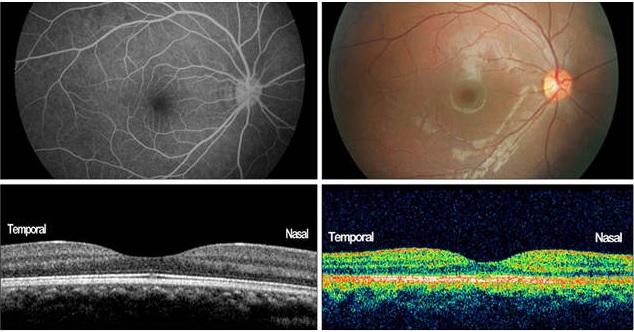ОКТА (оптическая когерентная томография-ангиография)