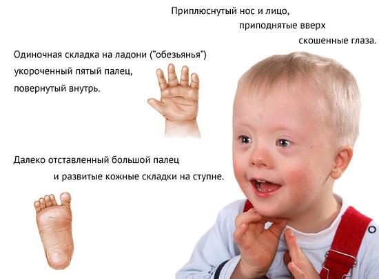 каковы признаки болезни дауна у ребенка