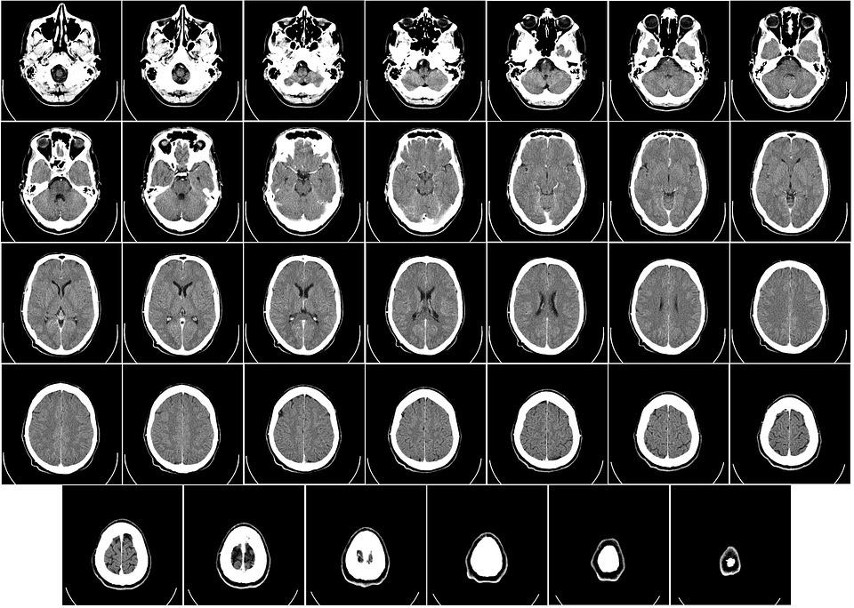 Как выглядит здоровый мозг на мрт