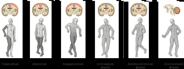 виды детского церебрального паралича