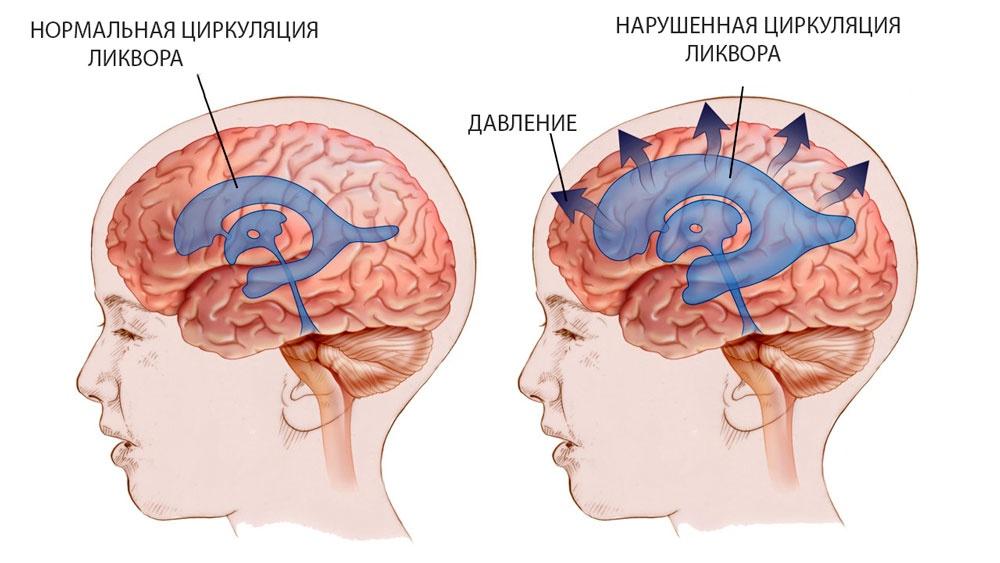 как выглядит на схеме нарушение давления внутри черепа