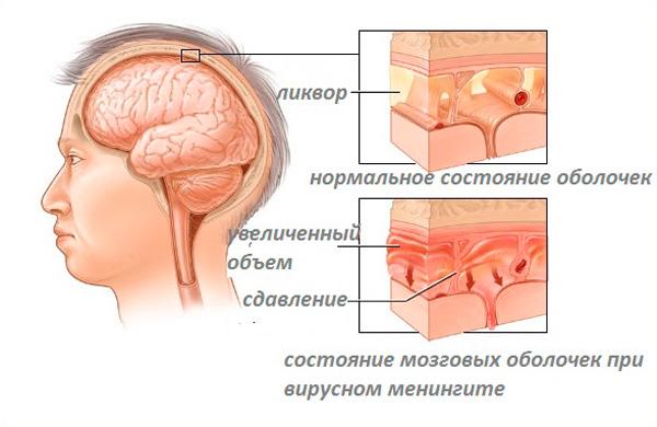 Причины гидроцефалии головного мозга