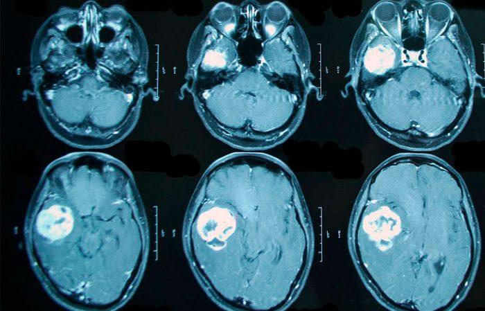 причины возникновения опухоли мозга